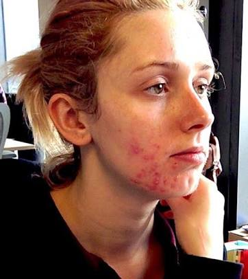 تعرفي على أسباب مشاكل بشرتك  وعلاجها حسب مكان الإصابة بالوجه