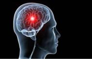 تعرّف على كيفية الوقاية من الجلطات الدماغية